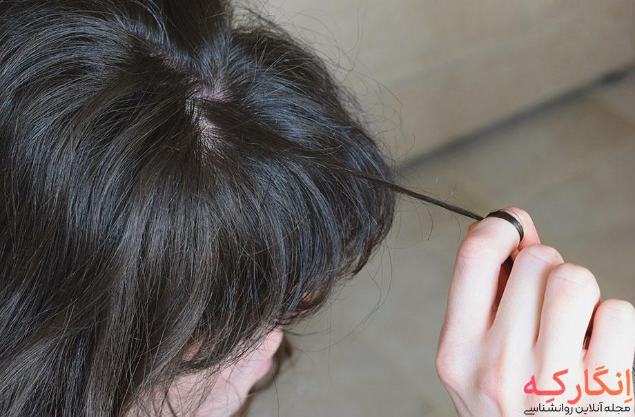 وسواس کندن مو